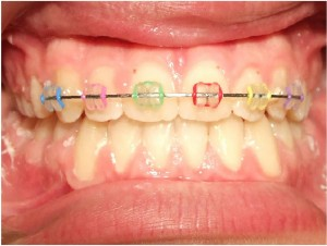 Colored braces